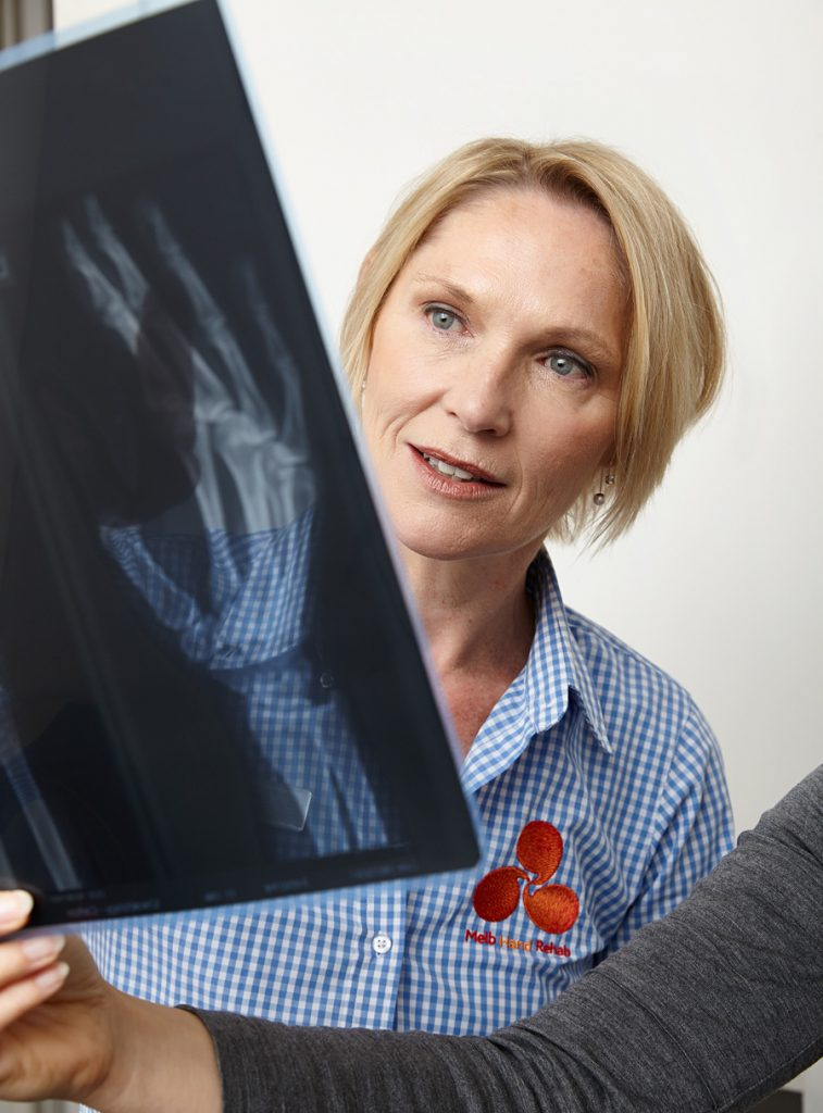 Melbourne Hand Rehab, Hand Therapy, Referrals, For Health Professionals, Careers