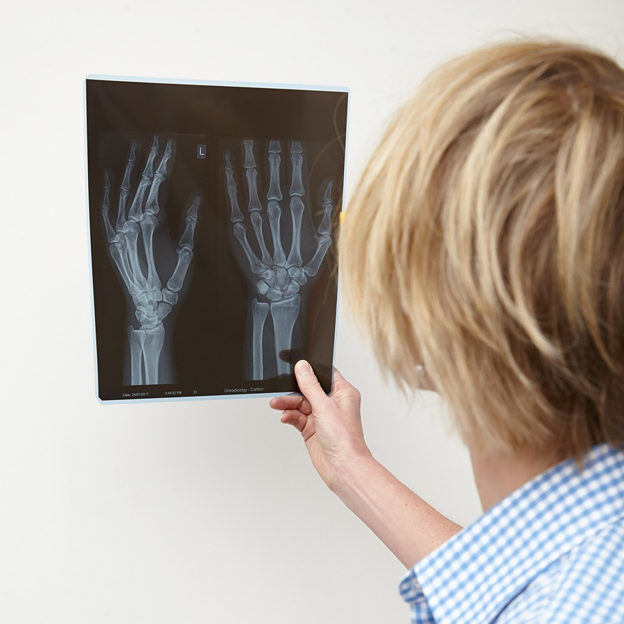 Melbourne Hand Rehab, Hand Therapy, Referrals, xray