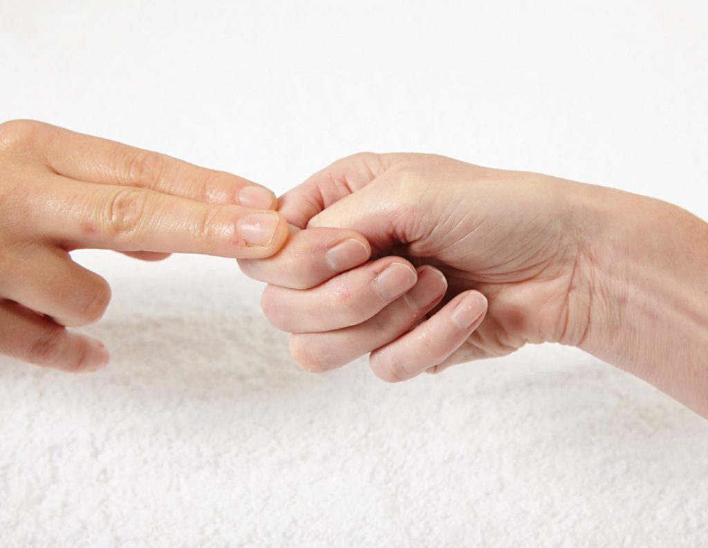 Hand Therapy, Hand Physio, De Quervain's tenosynovitis,