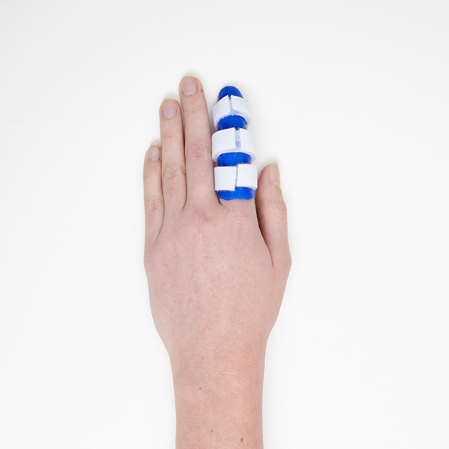 Hand Conditions, Sports Injuries, Finger splint, Finger Dislocation, fractured/broken finger, sprained finger,