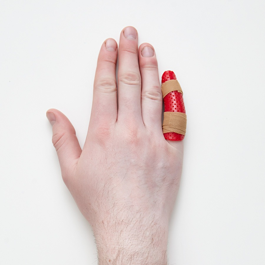 Hand conditions, hand therapy, finger splint, finger dislocation, volar plate injury,