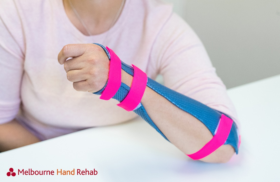 Melbourne Hand Rehab Splints and Braces