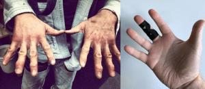 Melbourne Hand Rehab, typical hand injuries in Brazilian Jiu Jitsu