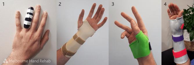 Image showing the four most common splints at Melbourne Hand Rehab: finger splint, wrist immobilisation splint, thumb spica, and the wrist and thumb immobilisation splint