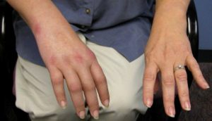 Image of patient hands suffering from CRPS - Complex Regional Pain Syndrome