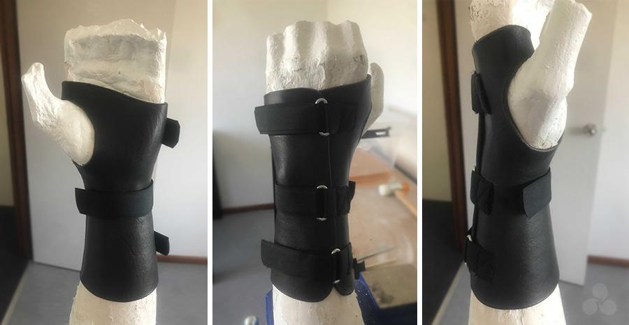 A custom made leather splint by Melbourne Hand Rehab