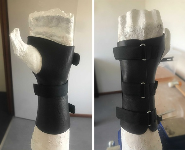 A custom made leather brace by Melbourne Hand Rehab