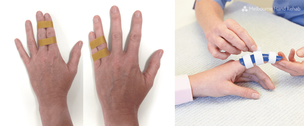 Buddy taping of fingers to mobilise the area - visit your hand therapist for assessment as soon as possible