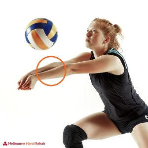 Common Volleyball Injuries when digging
