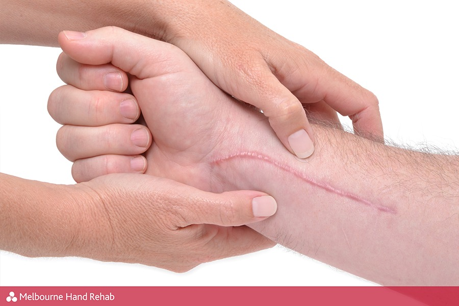 Melbourne Hand Rehab provides expert post-op rehabilitation and hand therapy