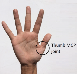 Melbourne Hand Rehab hand therapists can help with issues of thumb instability