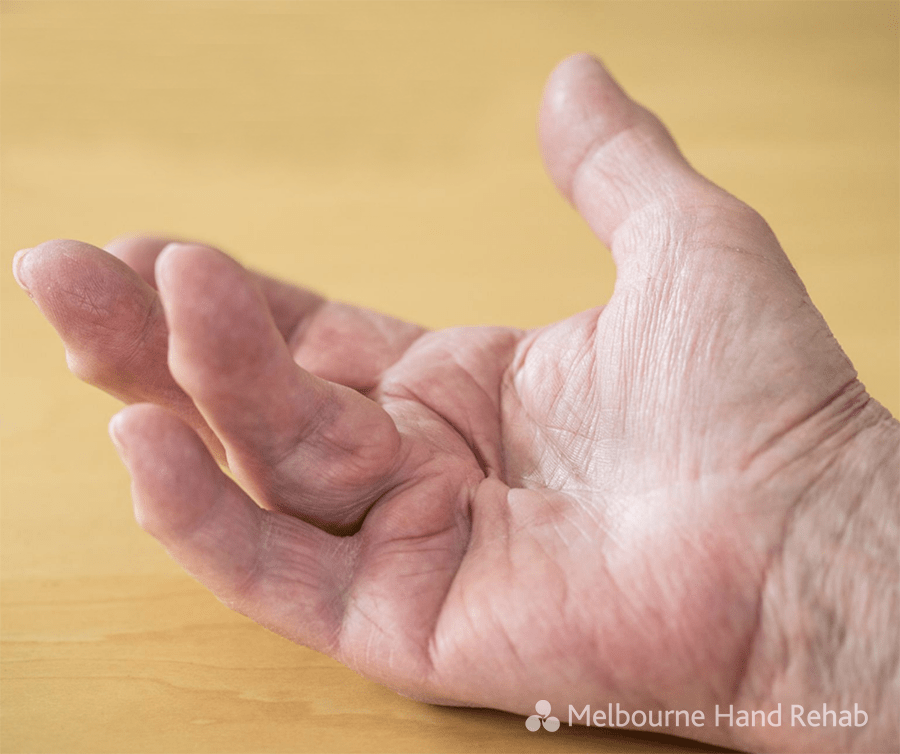 The Dreaded Dupuytren's Disease