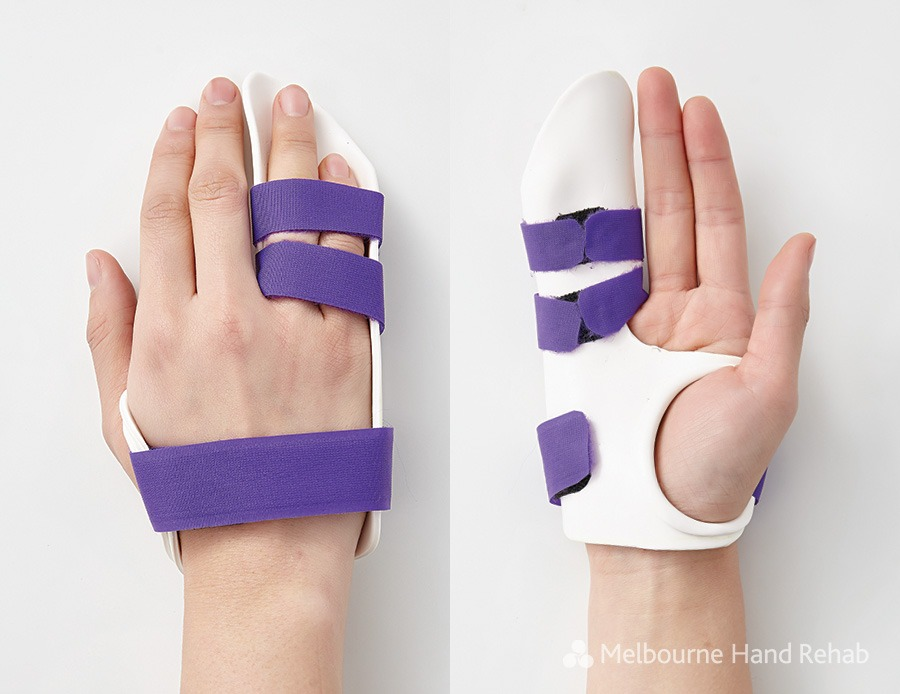 Splint used to protect the wound after Dupuytren's Disease surgery